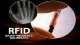 RFID-chip